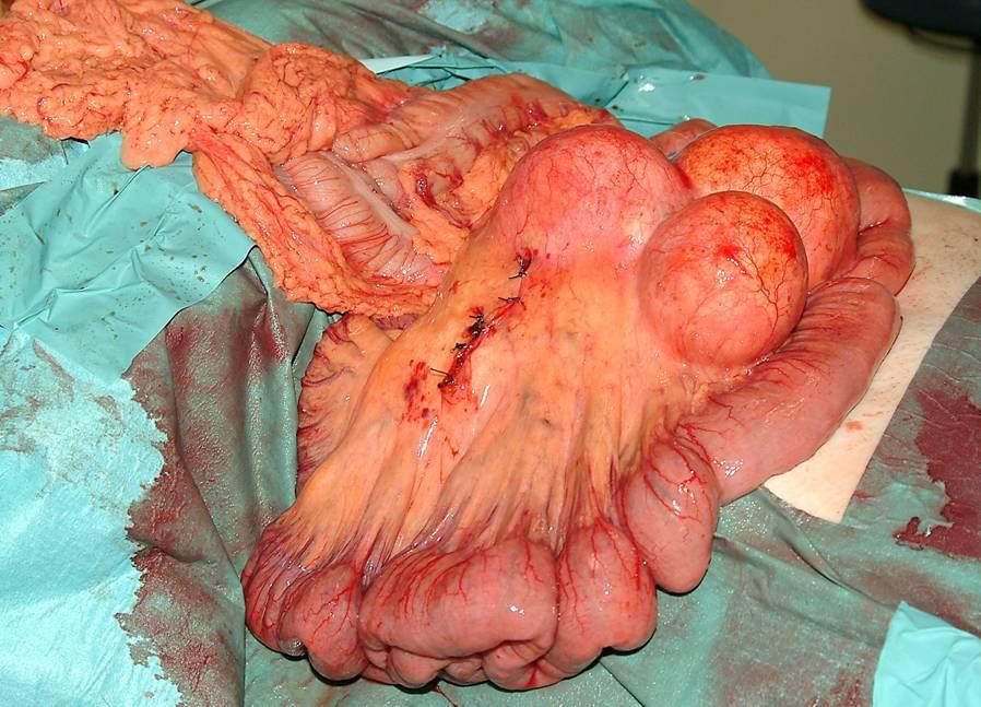 mesenteric panniculitis