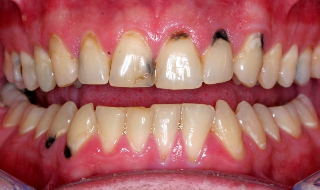 blackening of teeth
