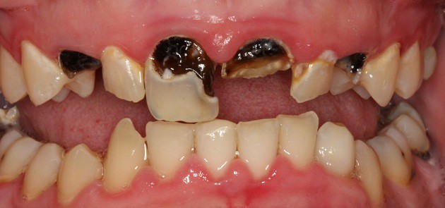 rotten teeth: causes, symptoms, treatment and pictures - trendy, Human Body