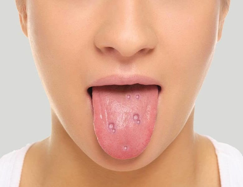 blisters on tongue