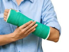 comminuted fracture definition