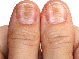 horizontal ridges in nails