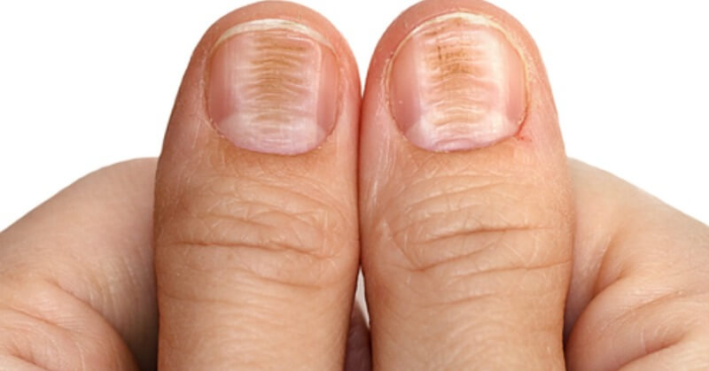 Horizontal ridges in nails-Causes, Symptoms, Treatment and Prevention