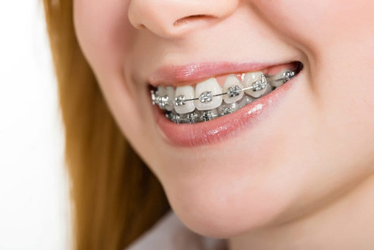 Foods to avoid with braces and Foods to eat with braces