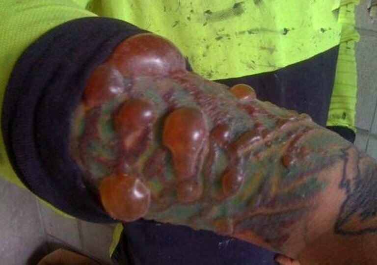 infection of tattoo
