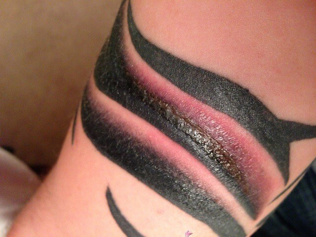 tattoo infection pictures