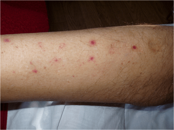 ecchymosis pictures 5