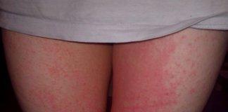 inner thigh rash