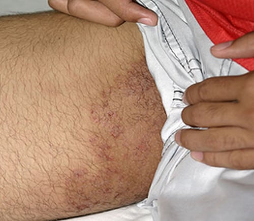inner thigh rash pictures