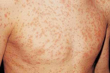 Early HIV rash