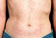 HIV rash