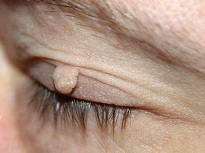 wart on eyelids