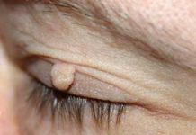 wart on eyelids