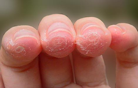 Callus on finger-Causes, Home remedies to get rid of them, Prevention