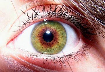 central heterochromia pictures