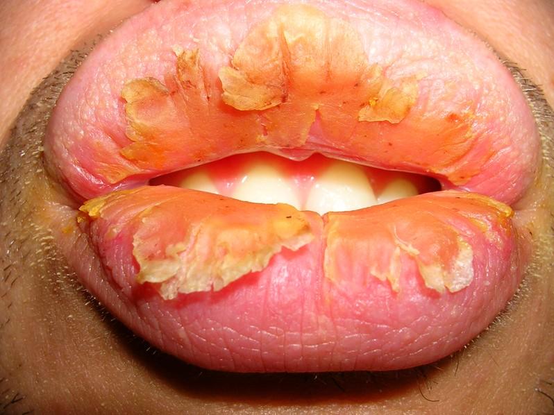 exfoliative-cheilitis-pictures-1