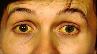 scleral icterus