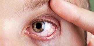 cyst on eyeball