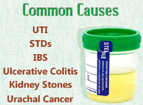 mucus in urine causes