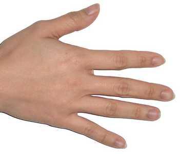 popped blood vessel in finger