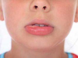 bubble inside lip