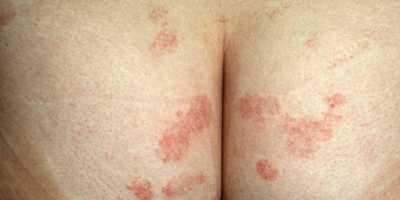 butt crack rash