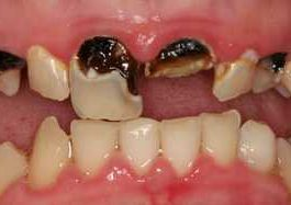 dying tooth