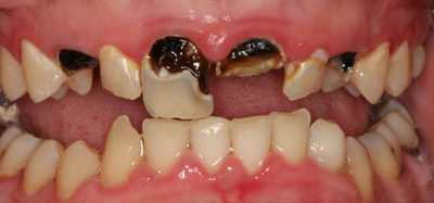 Dying tooth: 4 Causes, 5 Symptoms, 3 Remedies, Prevention