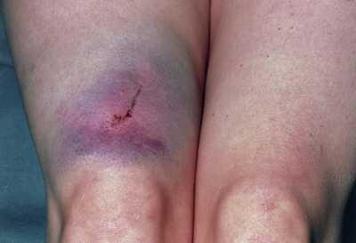 hematoma in leg
