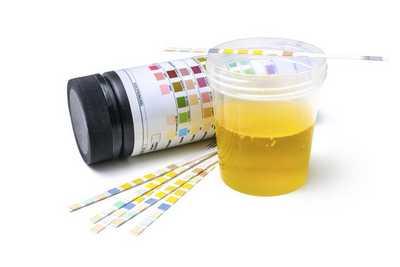 Ketones in urine:6 Causes, Symptoms, How to get rid of ketones in urine