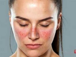 red patches on face