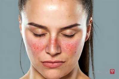 taches rouges sur le visage &quot;width =&quot; 400 &quot;height =&quot; 267 &quot;/&gt;    <figcaption class=