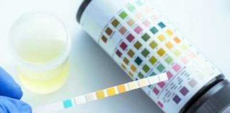 wbc esterase test