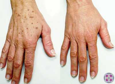 brown spots on hands overnight