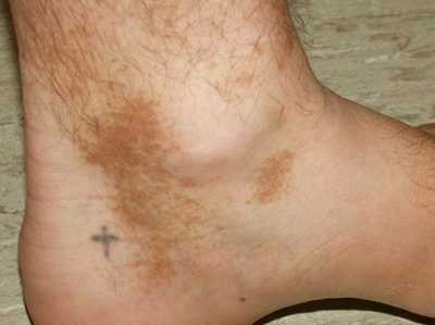 Dark skin on ankles: 10 Causes and 17 Remedies