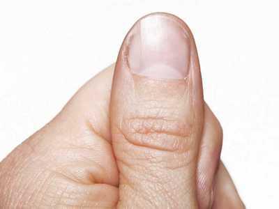 pain under thumb nail