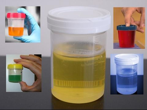 blue urine