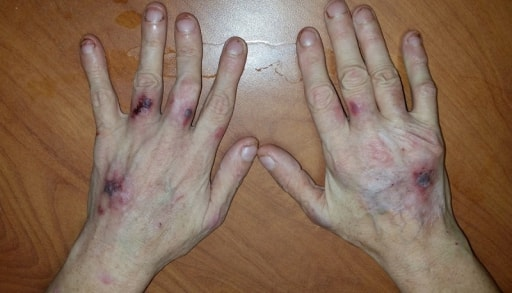 popped blood vessel in hand