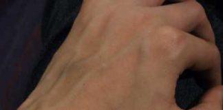 Bulging hand veins