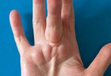 Lump in palm of hand