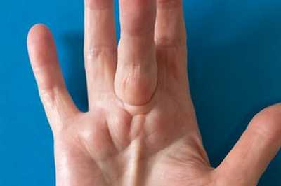 Lump in palm of hand: 10 Causes you must know