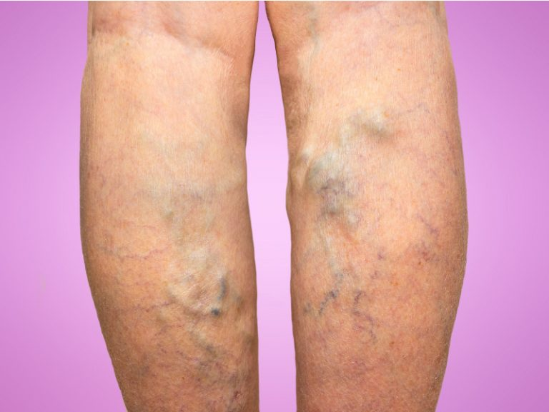 Varicose veins: Causes, Symptoms, Diagnosis and Treatments